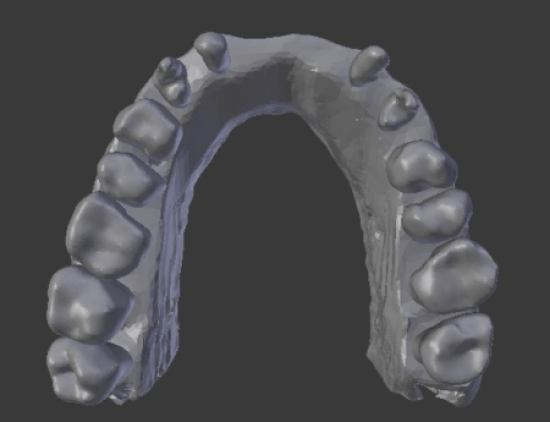 occlusal view of PRF failure