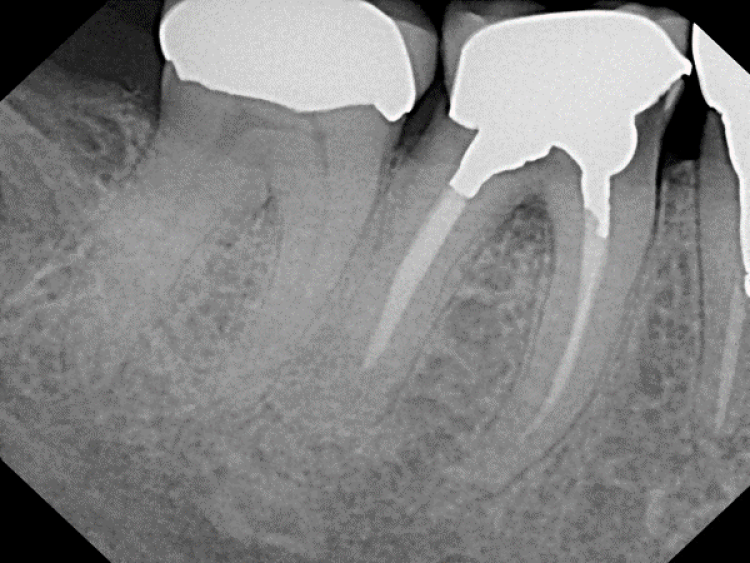 pre-op radiograph showing first molar before extraction and socket grafting
