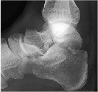Fracture of the Talus