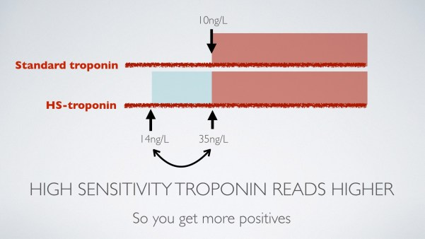 High sensitivity troponin T reads higher than the standard troponin T assay