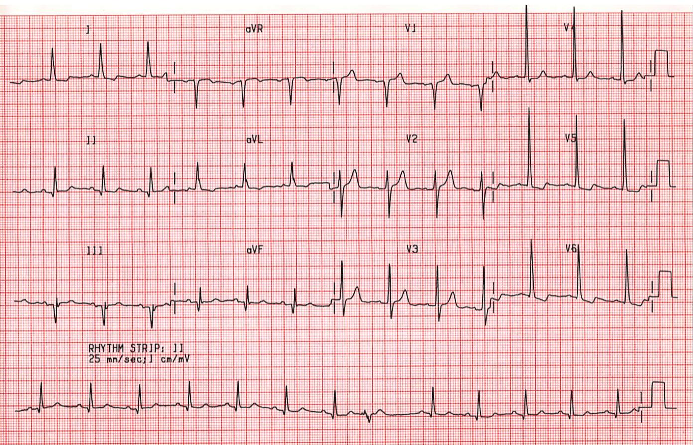 case a4  old inferior infarction  left ventricular hypertrophy  st emlyn u0026 39 s ecg library   u2022 st emlyn u0026 39 s
