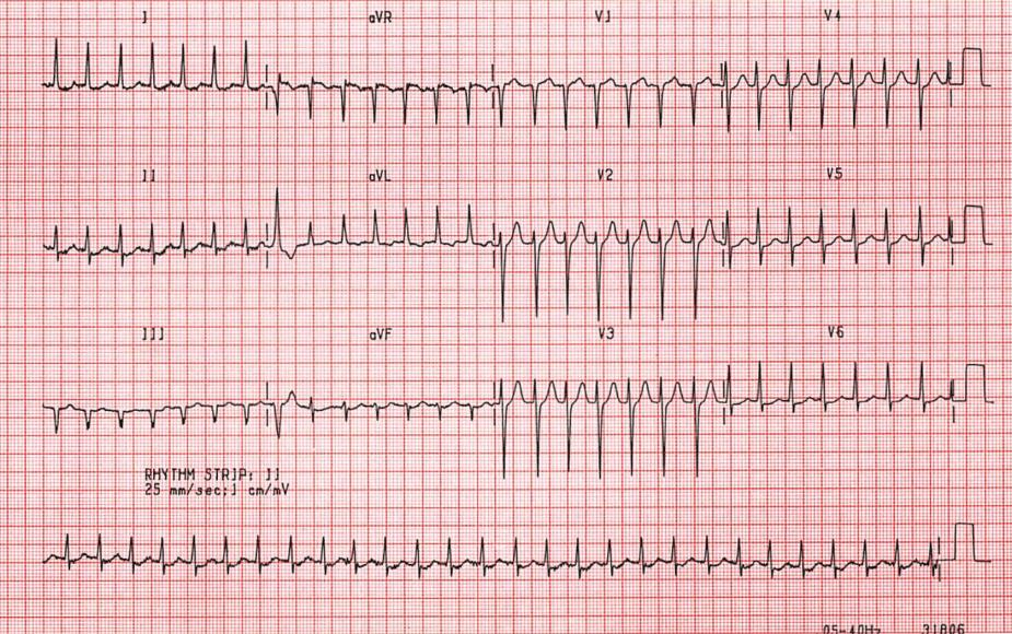 ECG AV Nodal Re-entrant Tachycardia