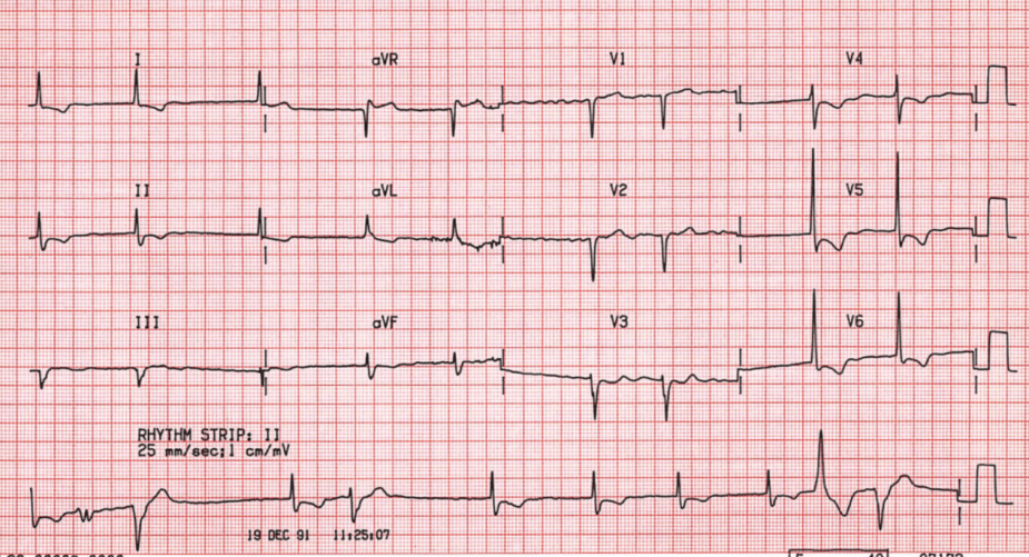 Case B17. Atrial Fibrillation 4. St Emlyn's ECG Library.