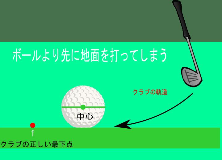 ゴルフのダフリ