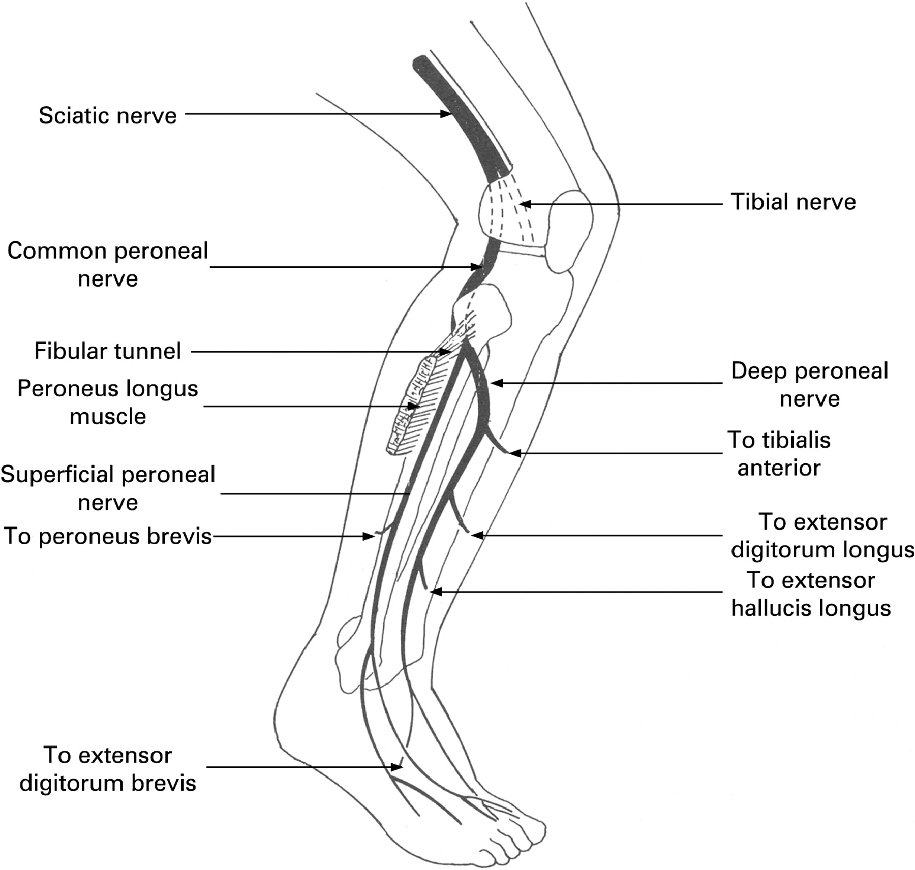 Common Peroneal Nerve Stepwards