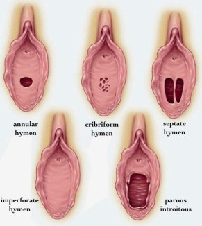 Imperforate Hymen - Stepwards