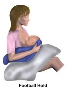 Stillposition Rückengriff