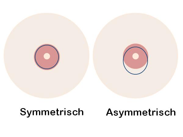 Grafik symmetrisch vs. asymmetrisch