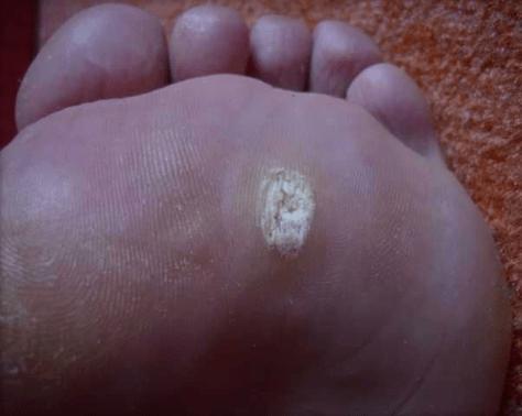 Wart HPV
