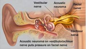 Acoustic Neuroma