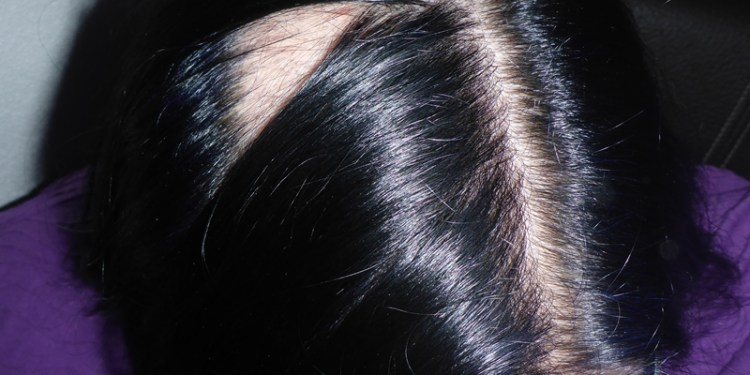 Alopecia Haarausfall kahle Stelle