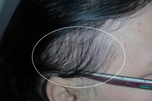 Alopecia areata kahle Stelle Haarausfall