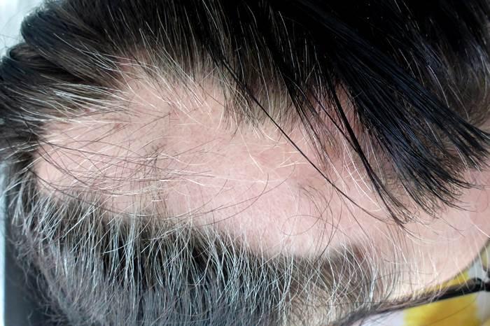 Haar-Update-kreisrunder Haarausfall April oben