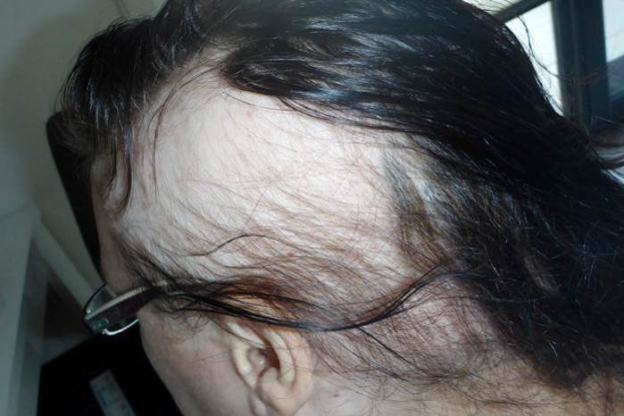 Haar-Update im August Haarausfall Alopecia areata