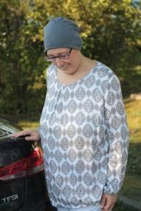 Alopecia Areata Awareness Month-September-kreisrunder Haarausfall