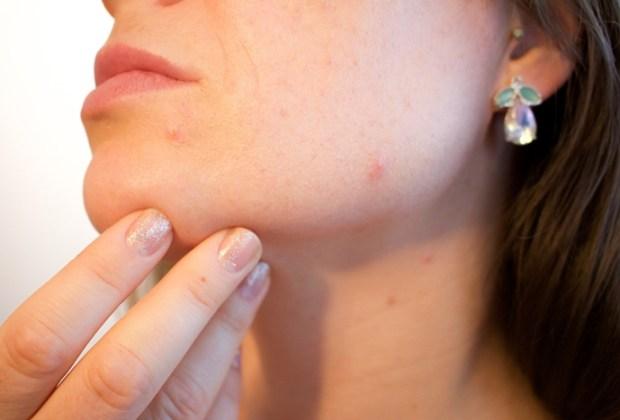 Hautbild-ketogen-verändern