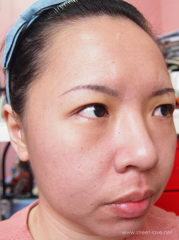 Skin Allergy5