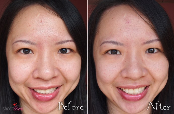 Clarins 4th Generation Shaping Facial Lift Before and After