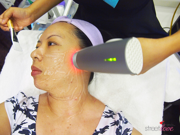 Renee Clinic Sublime Skin Contouring 12