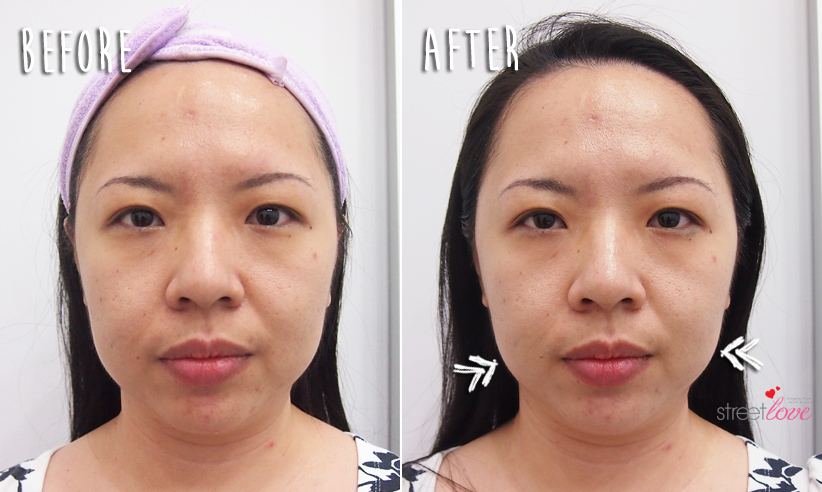 Renee Clinic Sublime Skin Contouring 17