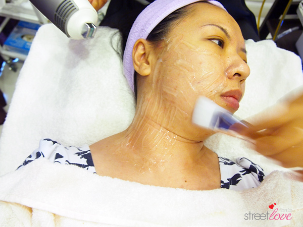 Renee Clinic Sublime Skin Contouring 6