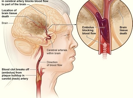 blood clot in an ischaemic stroke