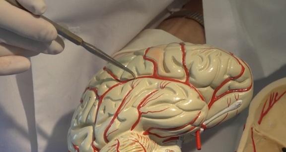 carotid artery Archives - Stroke carer