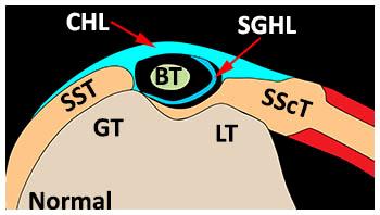 bicep tendinopathy