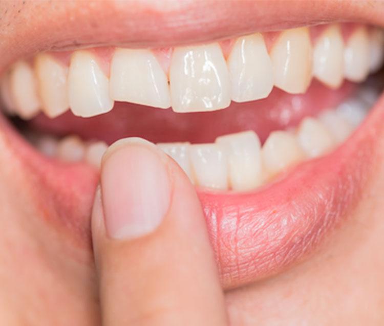 Come affrontare un dente scheggiato