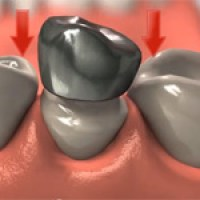 Does a tooth with a root canal need a crown?