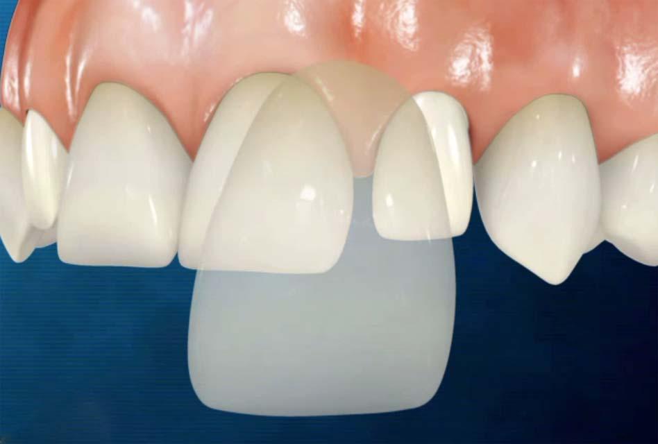 Kết quả hình ảnh cho Veneer porcelain dental paste