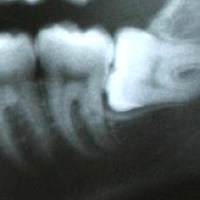 What is the worst that can happen if wisdom teeth are not removed?