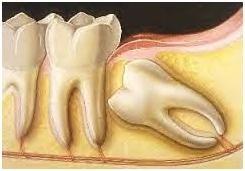 _dentalDam_chiururgia_orale_2.jpg