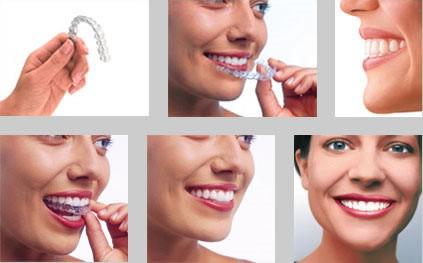 _dentalDam_ordotonzia_2.jpg