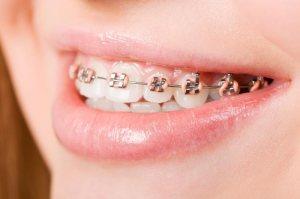 fotografia di apparecchio ortodontico