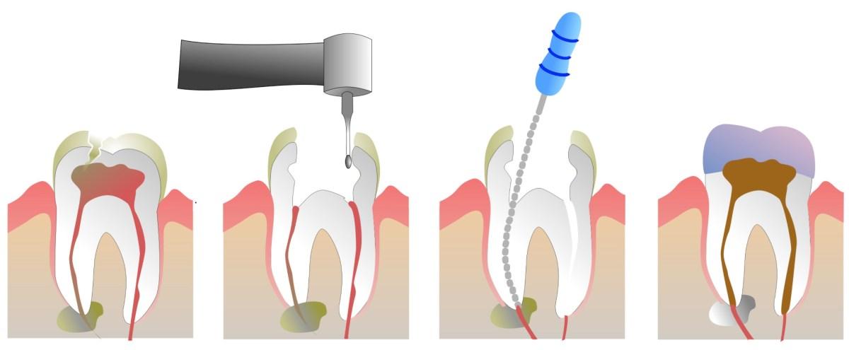 endodonzia - studio dentistico dalla corte forcellini