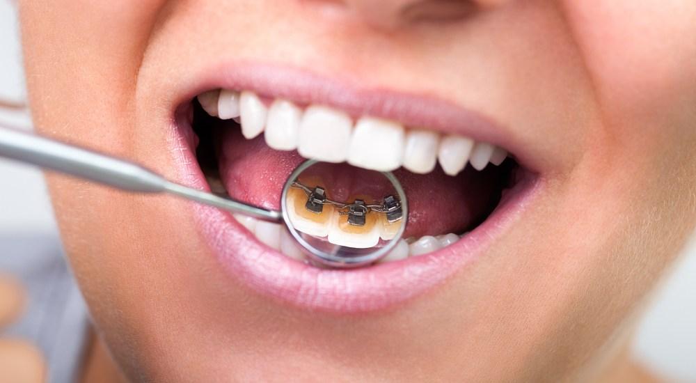 ortodonzia studio dentistico dalla corte forcellini
