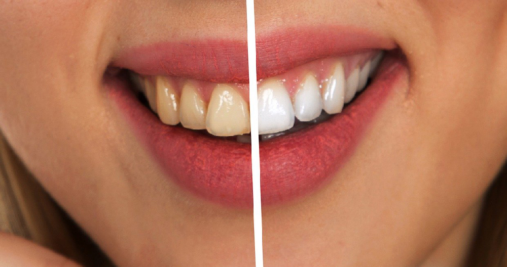 smalto dei denti