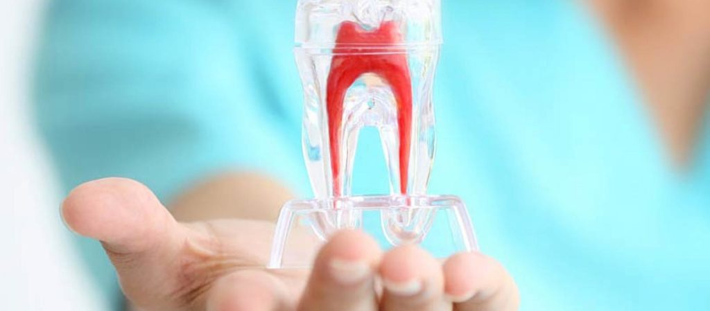 Studio Dentistico Pagliari | Endodonzia | Dentisti in Parma Soragna Fidenza Fontanellato Fiorenzuola