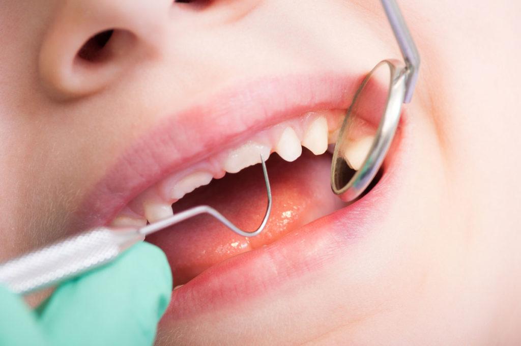 Studio Dentistico Pagliari | Pedodonzia | Dentisti in Parma Soragna Fidenza Fontanellato Fiorenzuola