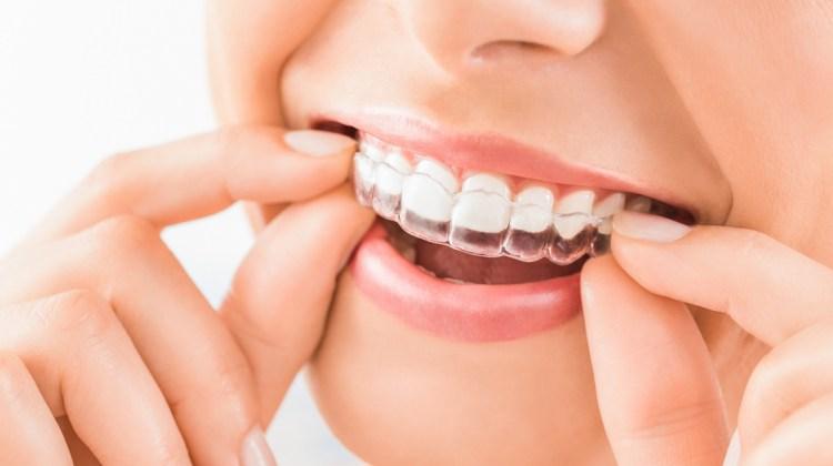 Ortodonzia Invisibile a Fidenza con Dentista dedicato | Studio Pagliari