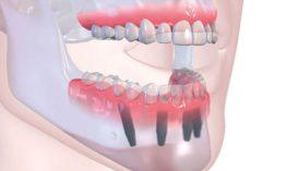 Impianti Dentali Promo Offerta Soragna Fidenza Fiorenzuola Fontanellato Busseto Castione Marchesi San Secondo Parmense Parma Studio Dentistico Pagliari