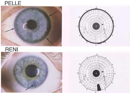 iridologia e reni
