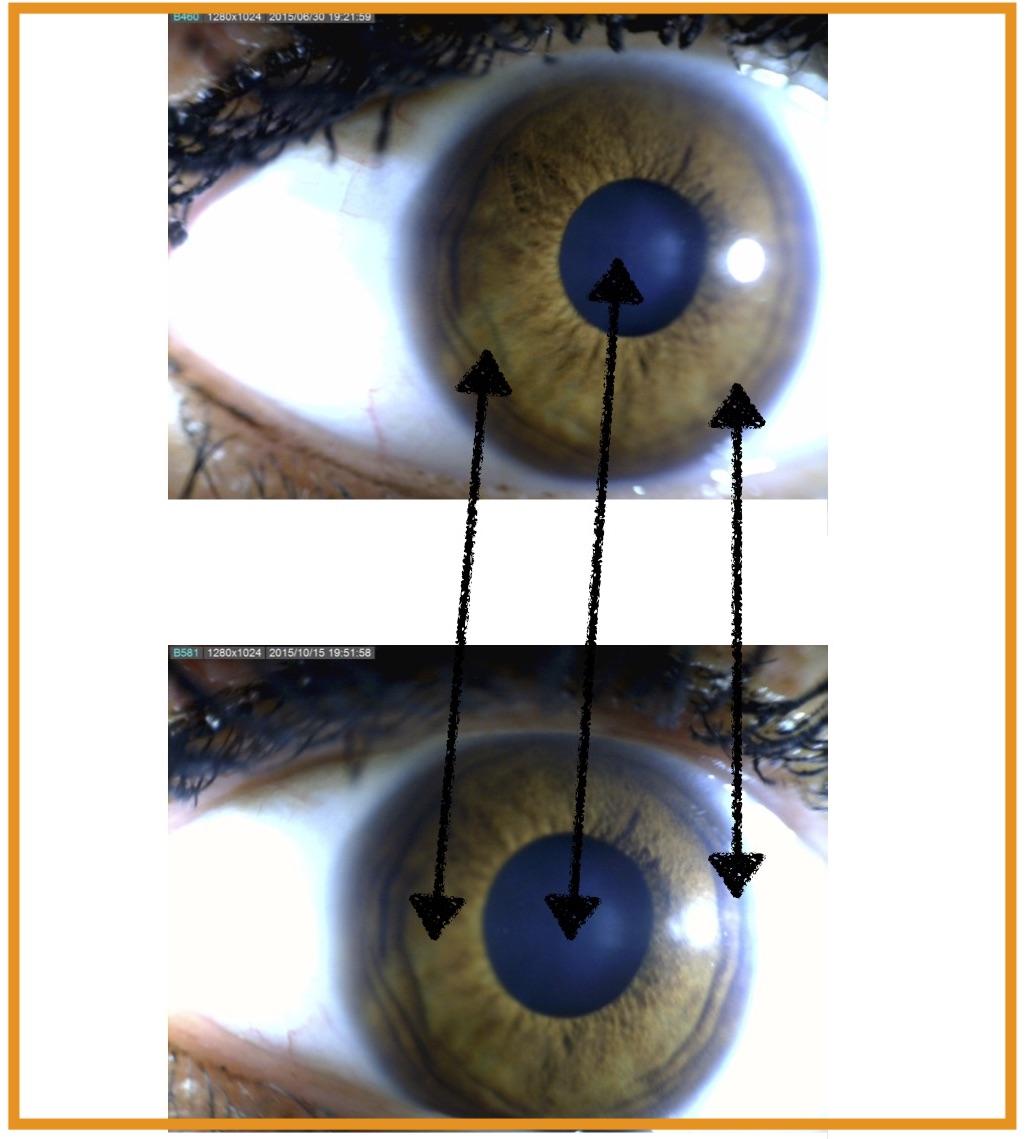 iridoscopio fotografico