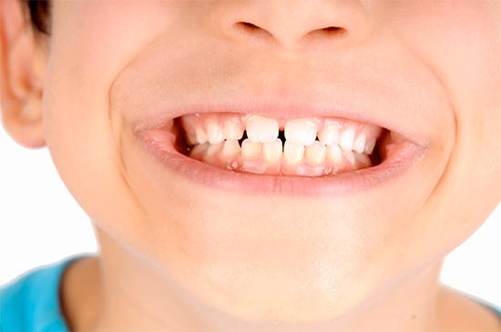 logopedista e denti storti