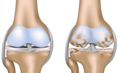 Artrosi precoce del ginocchio: verso la prevenzione secondaria.