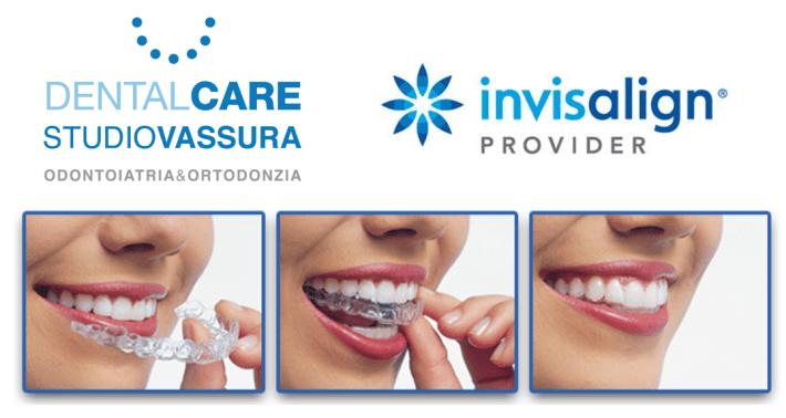Invisalign Provider e Ortodonzia Digitale a Zelo