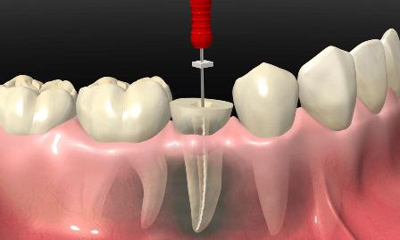 Cos'è l'endodonzia?