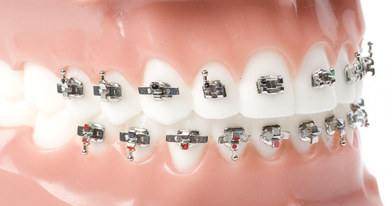 apparecchio ortodontico in inglese