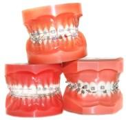 ortodonzista